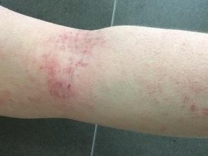 tsw-eczema-day-10-arm-1