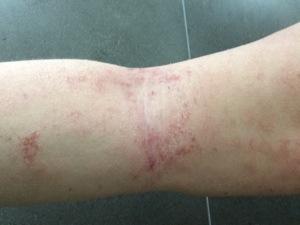 tsw-eczema-day-10-arm-2