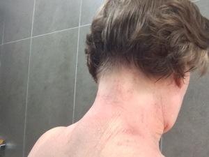 tsw-eczema-day-10-back-1