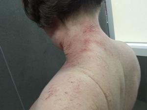 tsw-eczema-day-10-back-2