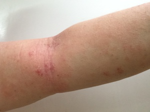 tsw-eczema-day-13-arm-1