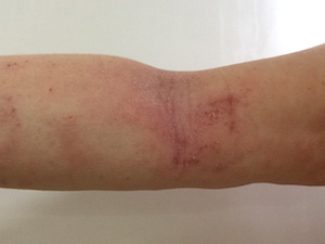 tsw-eczema-day-13-arm-2