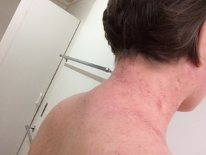 tsw-eczema-day-13-back-1