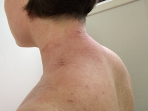tsw-eczema-day-13-back-2