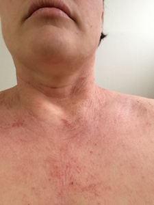 tsw-eczema-day-13-neck