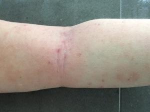 tsw-eczema-day-20-arm-1