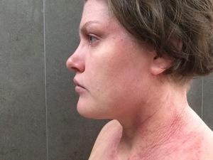 tsw-eczema-day-20-face-1