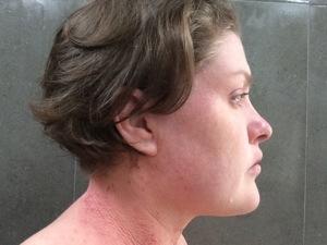 tsw-eczema-day-20-face-2