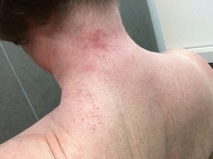 tsw-eczema-day-8-back