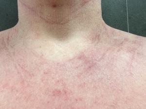 tsw-eczema-day-8-neck