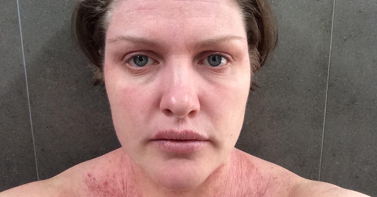 Day 20 Eczema TSW