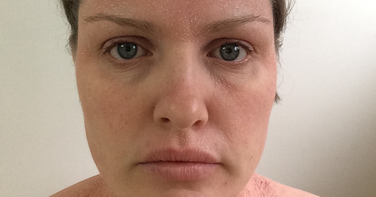 Eczema progress on face